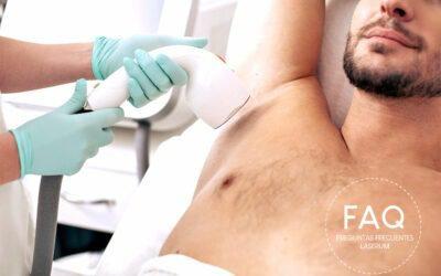 ¿A qué edad es recomendable comenzar el tratamiento láser en hombres?