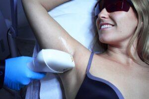 recomendaciones para tratamiento láser efectivo