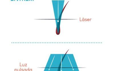 ¿Cuáles son las diferencias entre depilación láser diodo y fotodepilación ?