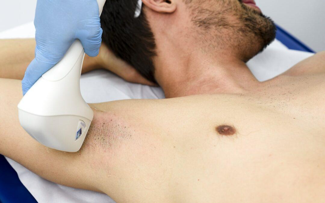 ¿Cuál es el método de depilación masculina más efectivo?