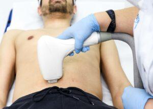 depilacion masculina con laser