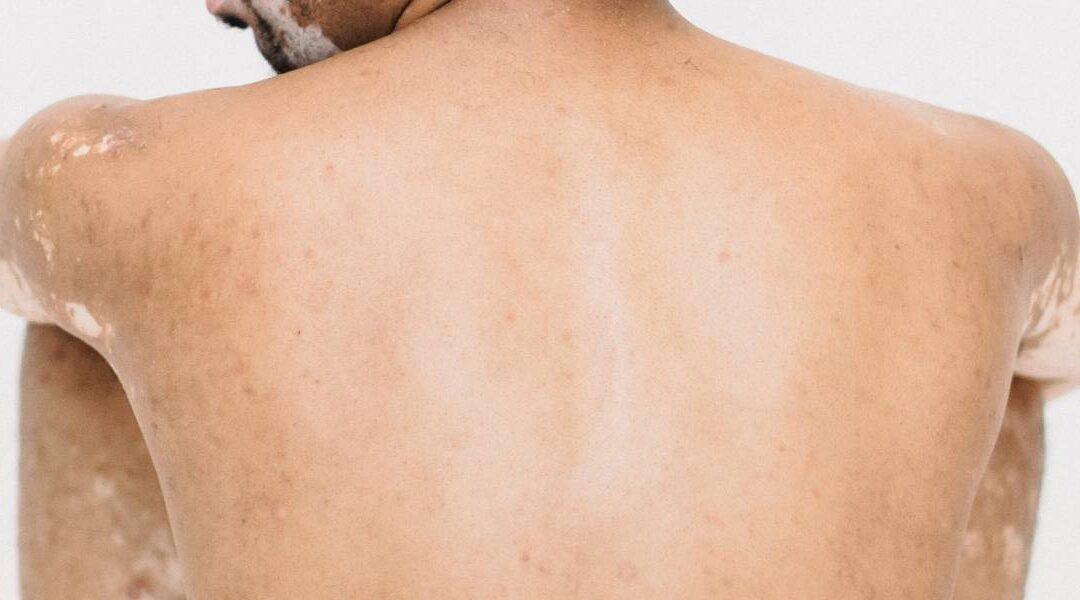 ¿Con la depilación láser se quitan las manchas de la piel?