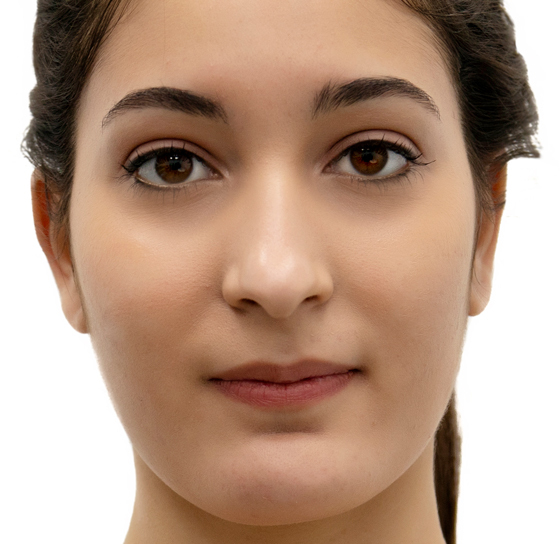 depilacion-laser-facial-completo