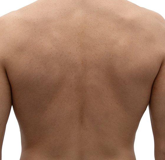 Depilación láser hombre espalda