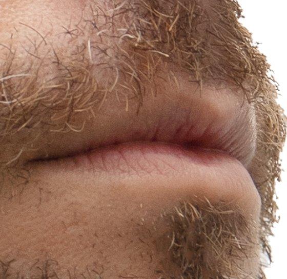 Depilación láser hombre labio superior
