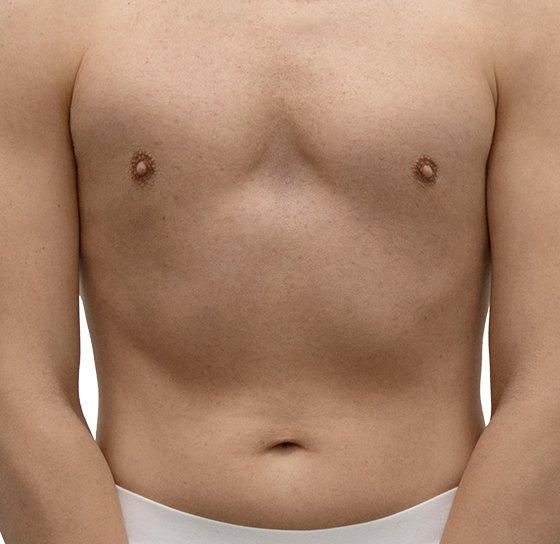 Depilación láser pecho y abdomen