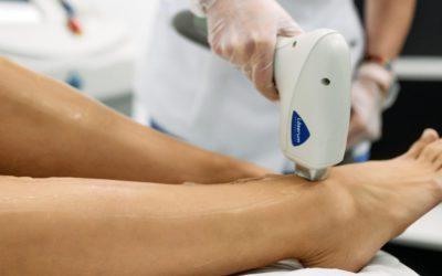 Falsos mitos de la depilación láser al descubierto