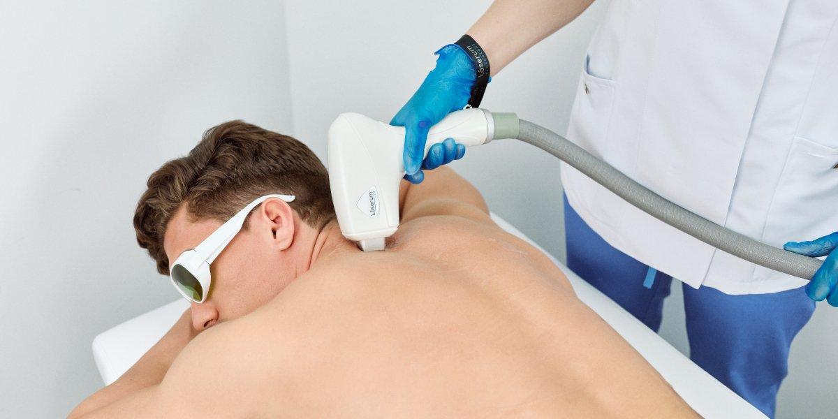 es-efectiva-la-depilacion-laser-en-casa